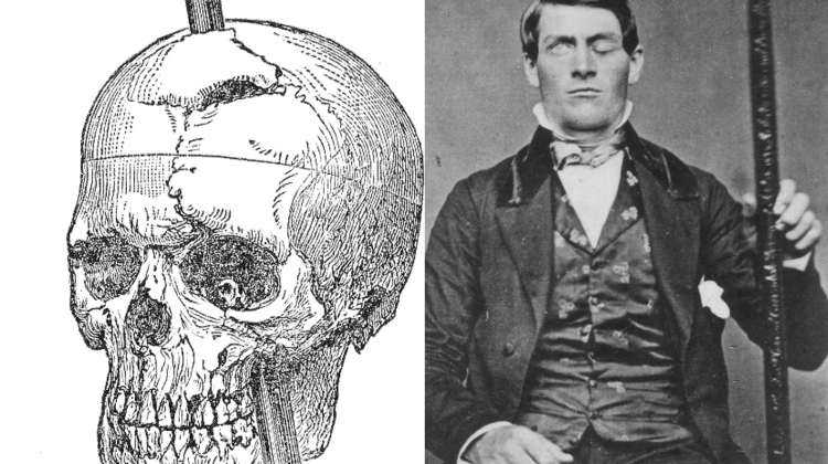 Phineas-Gage-with-skull-picture-750x420
