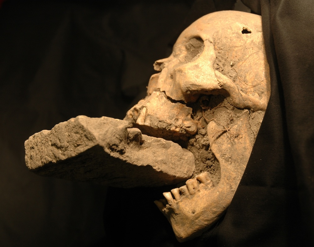 "The famous ""Vampire of Venice"" with a brick stuck in the jaw. [PHOTO: livescience]"